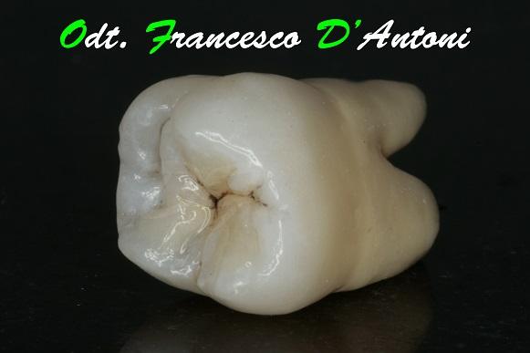 cerature-estetiche-laboratorio-d'antoni-francesco-1-inizio