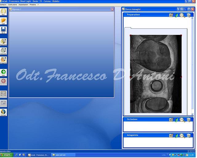 elemento-cad-cam-laboratorio-d'antoni-francesco-2-R