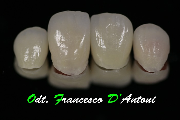 protesi-metal-free-francesco-d'antoni-2-R