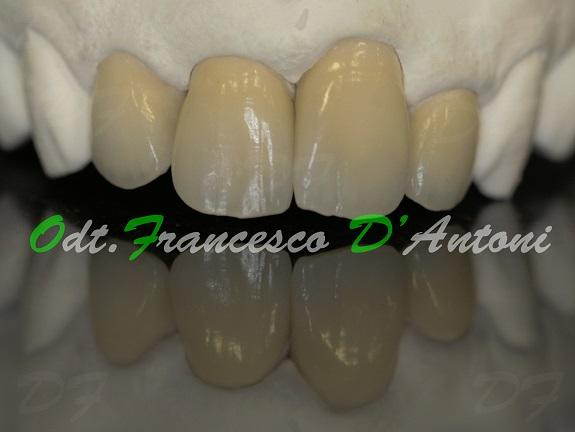 protesi-metal-free-francesco-d'antoni-2-inizio