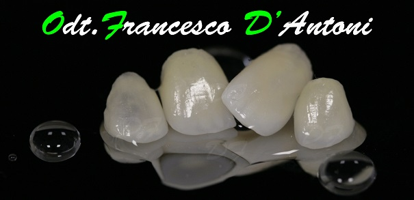 protesi-metal-free-francesco-d'antoni-3-R