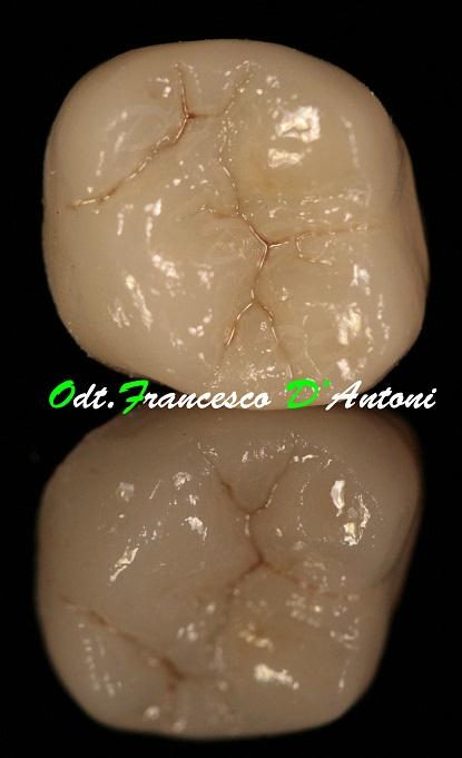 protesi-metal-free-francesco-d'antoni-6