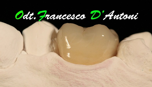 protesi-metal-free-francesco-d'antoni-7
