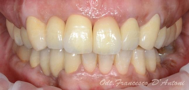 protesi-zirconio-ceramica-francesco-d'antoni-1-inizio-R