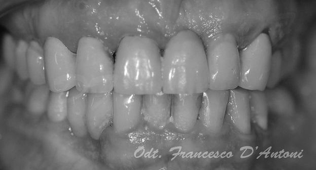 protesi-zirconio-ceramica-francesco-d'antoni-2-r