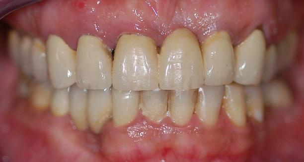 protesi-zirconio-ceramica-francesco-d'antoni-3-r