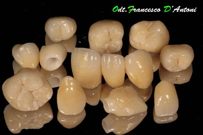 protesi-zirconio-ceramica-francesco-d'antoni-4-r