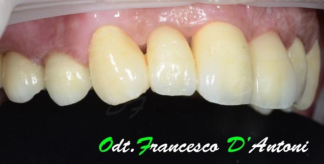 protesi-zirconio-ceramica-francesco-d'antoni-5-r