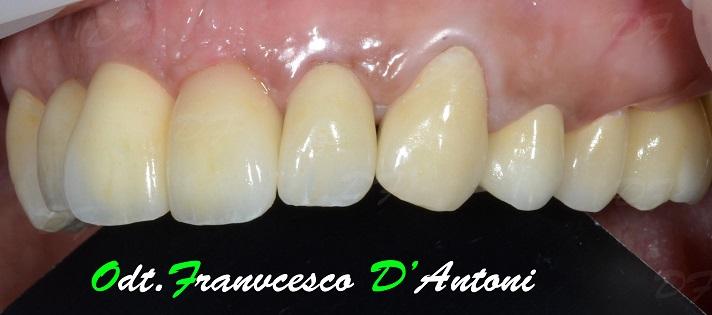protesi-zirconio-ceramica-francesco-d'antoni-6-r