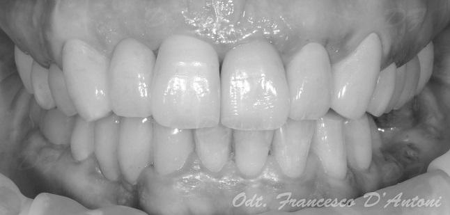 protesi-zirconio-ceramica-francesco-d'antoni-8-r